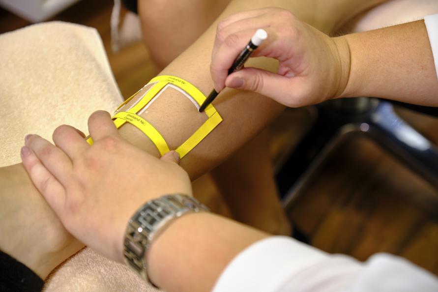 Laboratoriet markerar de sex behandlingsytorna på varje ben. Foto: Tobias Meye